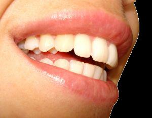 les prothèses dentaires