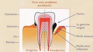 la chirurgie parodontale