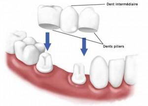 la pose de bridge dentaire en céramique
