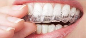 le domaine de l'esthétique dentaire